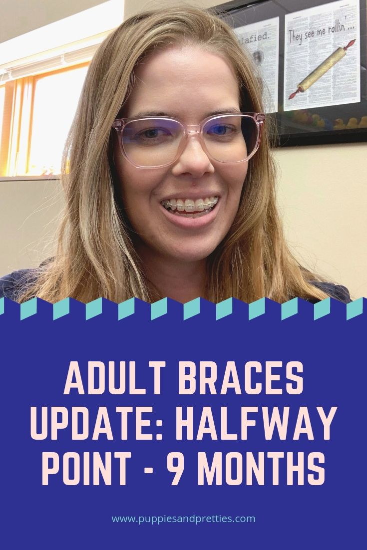 Adult Braces: Halfway Point | read about my update on adult ceramic braces with 9 months down and 9 more to go | Puppies & Pretties