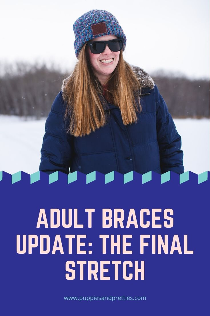 Adult Braces: The Final Stretch | Read about how I'm coping with braces during the coronavirus pandemic and how it has effected my braces. Plus an update on living with braces as an adult. | Puppies & Pretties